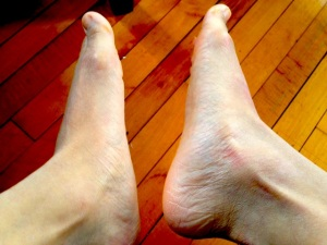Born with grossly Flat Feet