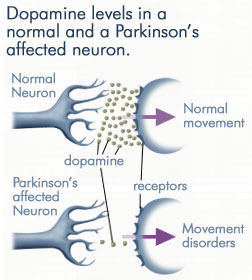 How Parkinson's Disease Affects Dopamine Levels and Movement