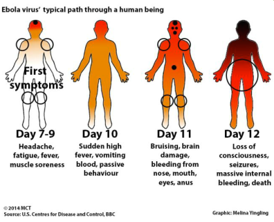 Ebola Symptom Progression