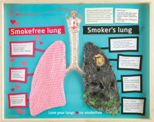Lungs of Smokers vs. Nonsmokers