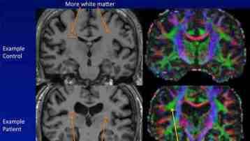 White Matter Abnormalities in CFS